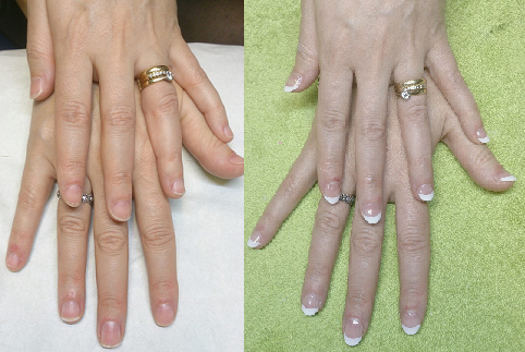 Acrylic French Nails